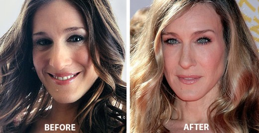 Sarah Jessica Parker Nose Job Sarah Jessica Parker Nose Job Before and After