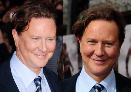Judge Reinhold Plastic Surgery Judge Reinhold Plastic Surgery Before and After
