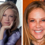 Ally Walker Plastic Surgery for Nose Job Fixed