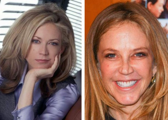 Ally Walker Before After Plastic Surgery Ally Walker Plastic Surgery for Nose Job Fixed