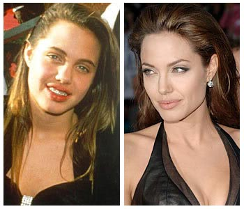 Did angelina jolie get implants