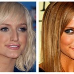Ashlee Simpson Plastic Surgery Before and After