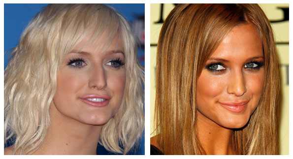 AshleeSimpsonPlasticSurgery Ashlee Simpson Plastic Surgery Before and After