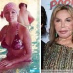 Elsa Patton Plastic Surgery Gone Wrong