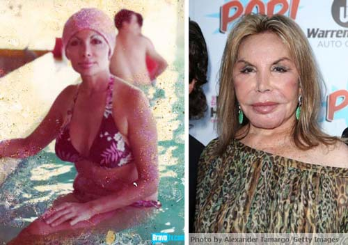 Elsa Patton Plastic Surgery Before After Elsa Patton Plastic Surgery Gone Wrong