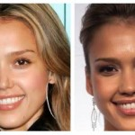 JessicaAlba NoseJob 150x150 Ashlee Simpson Plastic Surgery Before and After