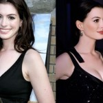 Did Anne Hathaway Have Plastic Surgery ?