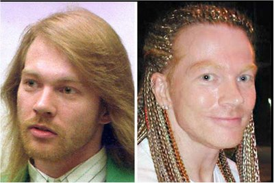axl rose plastic surgery Axl Rose Plastic Surgery Before and After