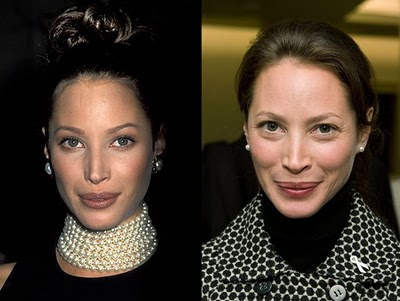 christy turlington plastic surgery Christy Turlington Nose Job Before and After