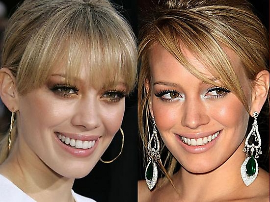 hillary duff nose job Did Hilary Duff Get Plastic Surgery ?