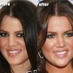 Did Khloe Kardashian get Plastic Surgery on Her Nose ?