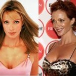 Lauren Holly Plastic Surgery Before and After