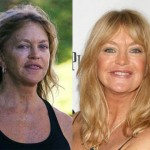 Goldie Hawn Plastic Surgery Before and After
