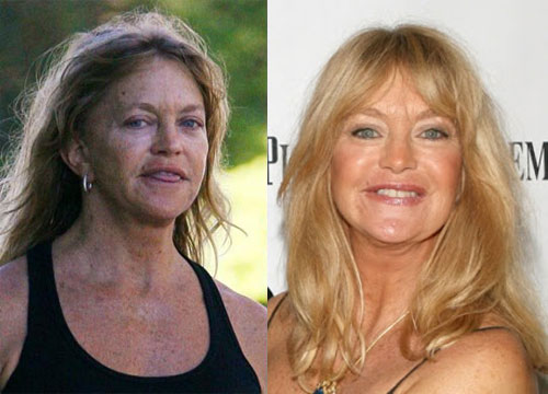 Goldie Hawn Plastic Surgery Before and After Picture Goldie Hawn Plastic Surgery Before and After