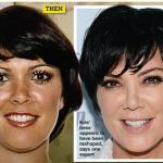 Kris Jenner Plastic Surgery for Breast Implant and Facelift