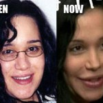 Nadya Suleman Plastic Surgery Before and After