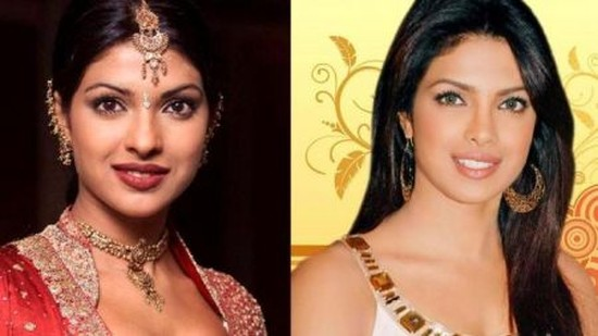 Priyanka Chopra before and after Priyanka Chopra Plastic Surgery Before and After