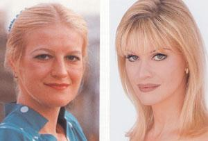 cindy jackson plastic surgery Cindy Jackson Plastic Surgery Before and After