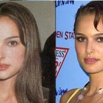 Natalie Portman Plastic Surgery Before and After
