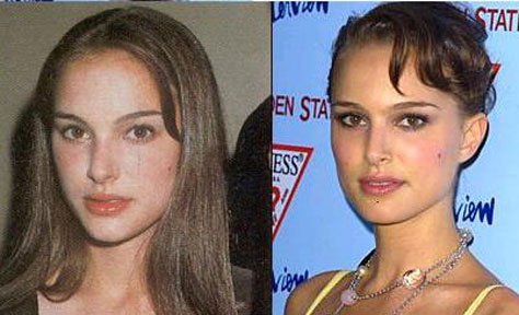 natalie portman nose jpb Natalie Portman Plastic Surgery Before and After