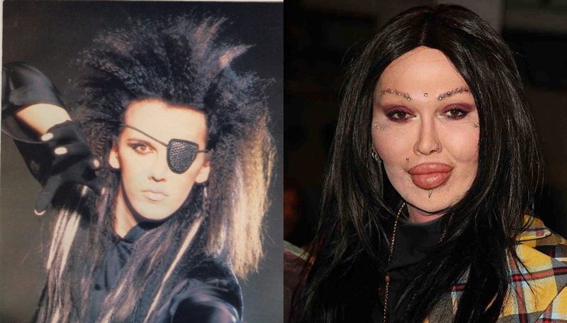 pete burns plastic surgery Pete Burns Bad Plastic Surgery
