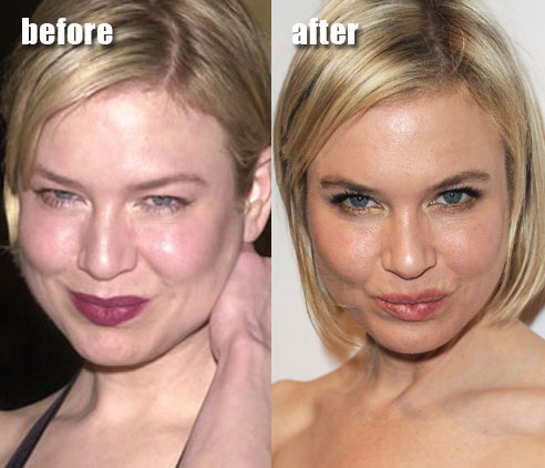 renee plastic surgery Renee Zellweger Plastic Surgery Before and After