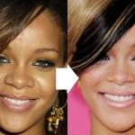 Did Rihanna Get a Nose Job ?