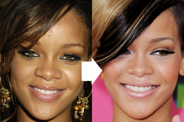 rihanna plastic surgery Did Rihanna Get a Nose Job ?