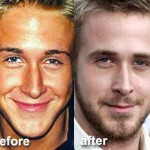 Ryan Gosling Plastic Surgery Before and After
