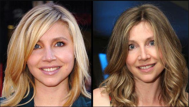 sarah chalke plastic surgery Did Sarah Chalke Have Plastic Surgery ?