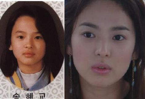 song hye kyo plastic surgery Song Hye Kyo Plastic Surgery Before and After