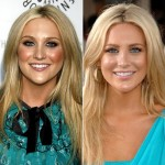 Stephanie Pratt Plastic Surgery Before and After