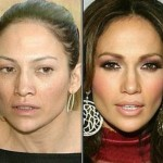 Is Jennifer Lopez Beauty Caused by Plastic Surgery?