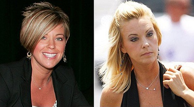 Kate Gosselin Plastic Surgery Before and After Did Kate Gosselin Take Plastic Surgery ?