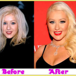 Did Christina Aguilera Have Plastic Surgery?