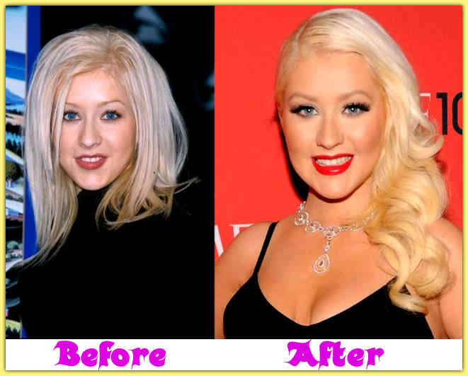 christina aguilera before and after plastic surgery Did Christina Aguilera Have Plastic Surgery?