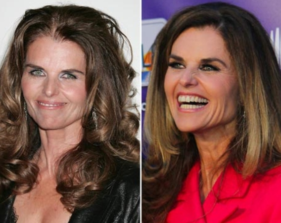 Maria Shriver Plastic Surgery Before and After Maria Shriver Plastic Surgery Before and After