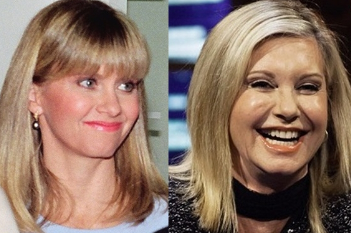 Olivia Newton John Plastic Surgery Before and After Debating about the Young Look of Olivia Newton John Plastic Surgery
