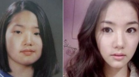 Park Min Young Plastic Surgery Before and After 450x250 Did Park Min Young Have Plastic Surgeries?