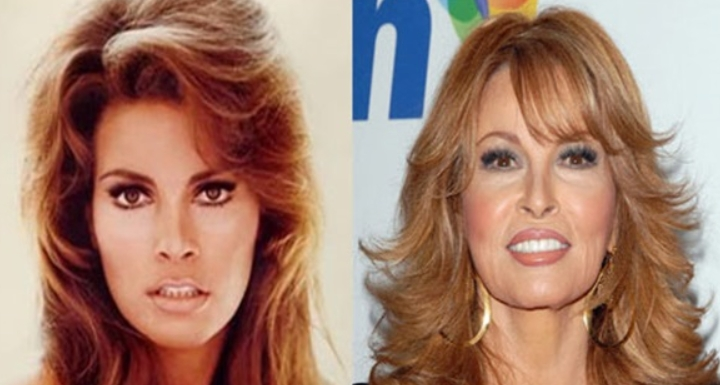 Raquel Welch Plastic Surgery Before and After Did Raquel Welch Take a Plastic Surgery?