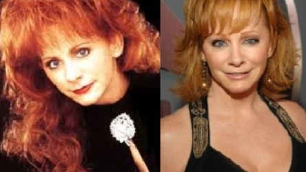 Reba McEntire Plastic Surgery Before and After 444x250 Has Reba McEntire Taken Plastic Surgery?