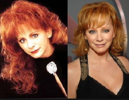 Reba McEntire Plastic Surgery Before and After Has Reba McEntire Taken Plastic Surgery?