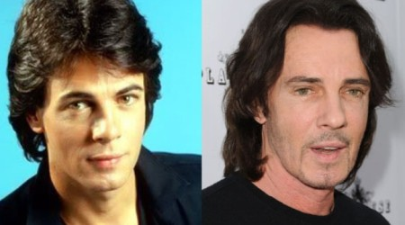 Rick Springfield Plastic Surgery Before and After 450x250 The Story of Rick Springfields Plastic Surgery
