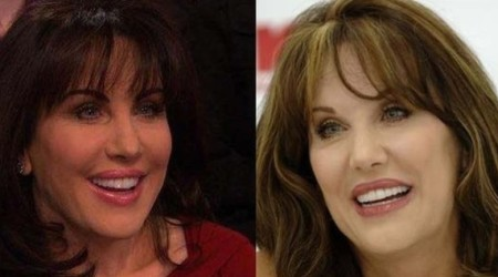 Robin McGraw Plastic Sugery Before and After 450x250 The Plastic Surgery Rumors of Robin McGraw