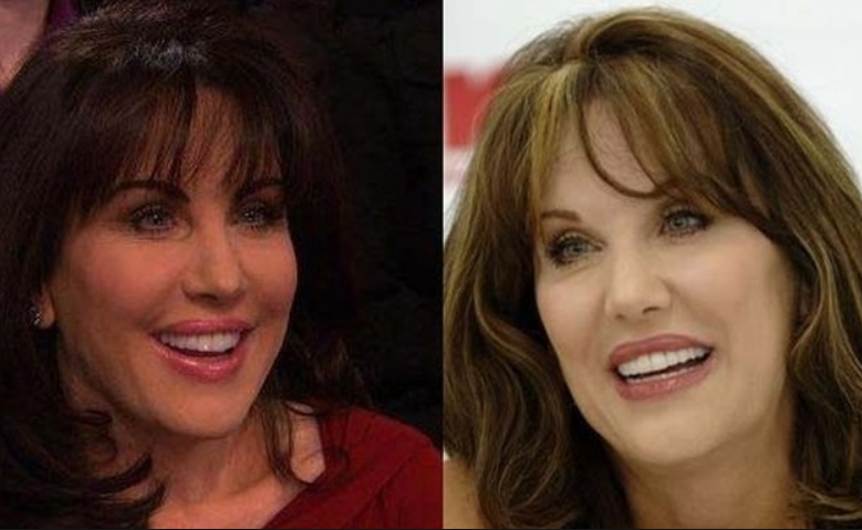 Robin McGraw Plastic Sugery Before and After The Plastic Surgery Rumors of Robin McGraw