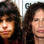 Steven Tyler Plastic Surgery Before and After 150x150 Did Vanna White Take Plastic Surgery?