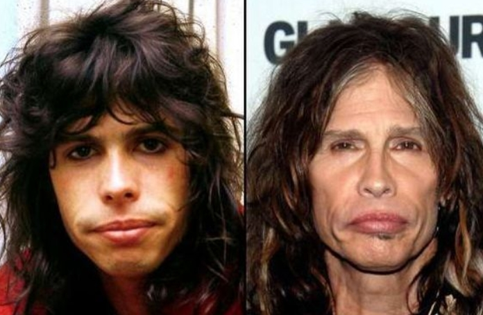 Steven Tyler Plastic Surgery Before and After Steven Tyler Plastic Surgery   Before and After