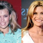 Did Vanna White Take Plastic Surgery?