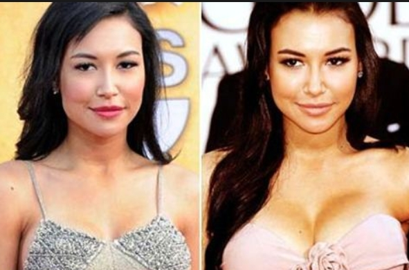 Naya Rivera Plastic Surgey Before and After Is it Naya Rivera Too Young For Having Plastic Surgery?